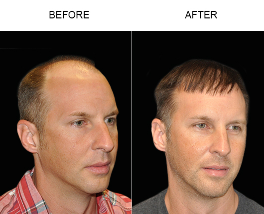 Hair Restoration Before And After Photo In Florida