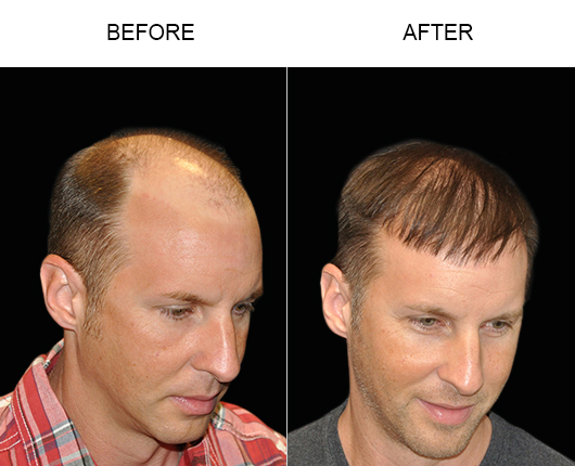 Hair Restoration Before & After Photo In Florida