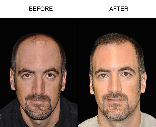 Photo Of Hair Restoration Results In Florida