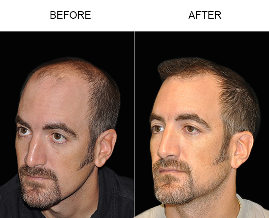Before And After Photo Of Hair Restoration In Florida