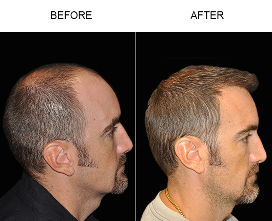 Before & After Photo Of Hair Restoration In Florida