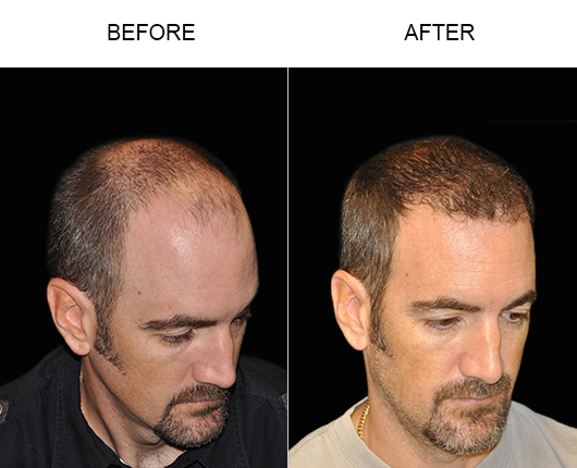 Hair Restoration Surgery Before And After Photo