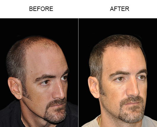 Hair Restoration Surgery Before & After Photo