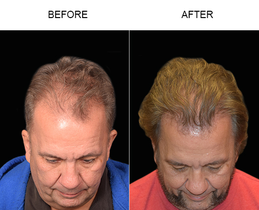 Photo Of Hair Restoration Surgery Results