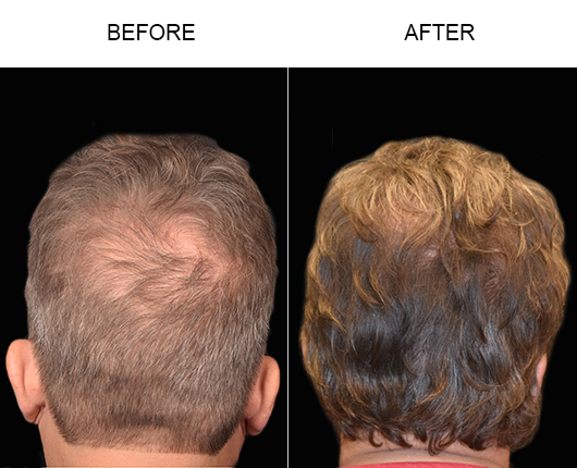 Before And After Photo Of Hair Restoration Surgery