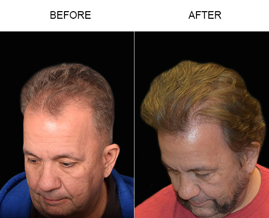 Before & After Photo Of Hair Restoration Surgery