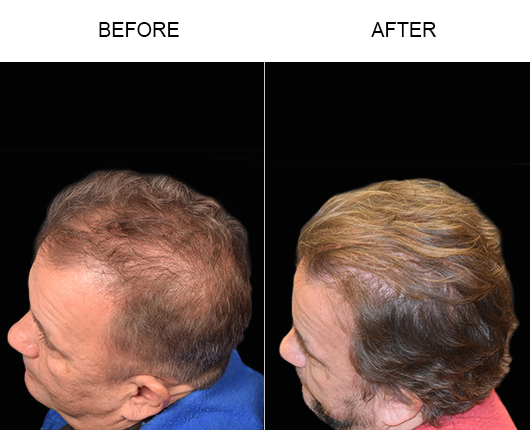 Hair Restoration Surgery Before And After Photo In Florida