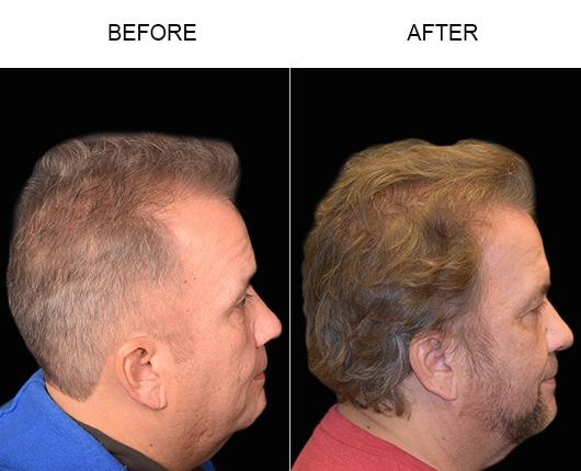 Hair Restoration Surgery Before & After Photo In Florida