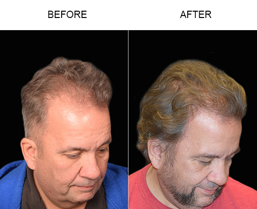 Photo Of Hair Restoration Surgery Results In Florida