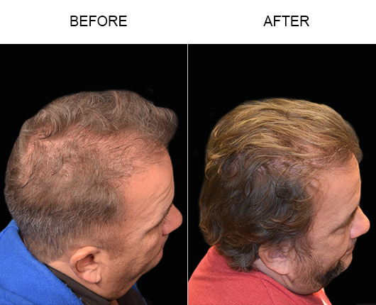 Before And After Photo Of Hair Restoration Surgery In Florida