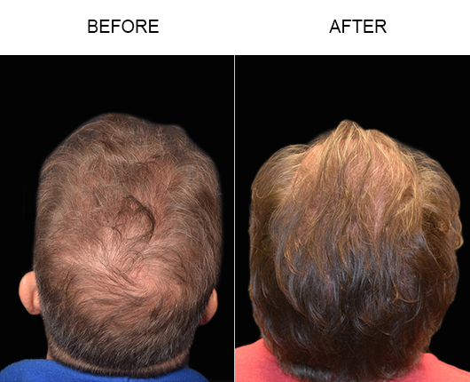 Before & After Photo Of Hair Restoration Surgery In Florida