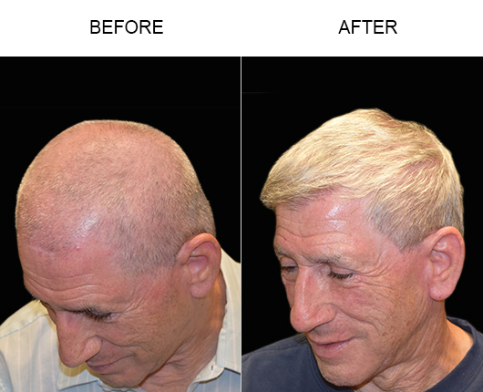 Hair Transplant Before And After In Florida