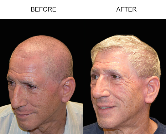 Hair Transplant Before & After In Florida