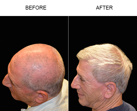 Hair Transplant Results In Florida