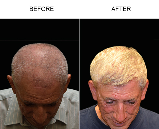 Before And After Hair Transplant In Florida