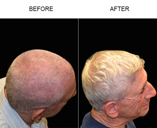 Before & After Hair Transplant In Florida