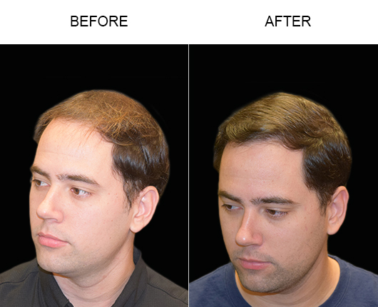 Hair Transplant Surgery Before & After