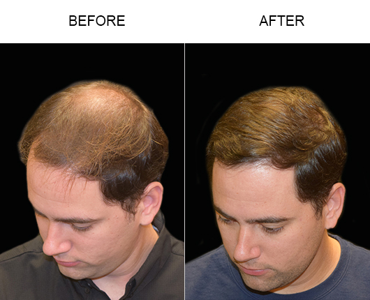 Hair Transplant Surgery Results
