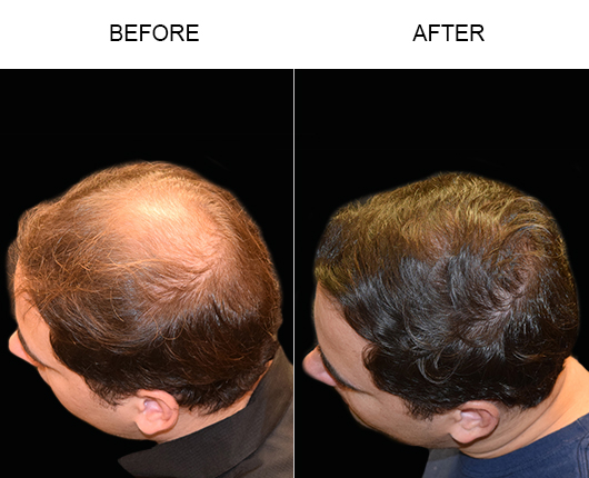 Before And After Hair Transplant Surgery