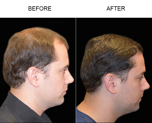 Before & After Hair Transplant Surgery