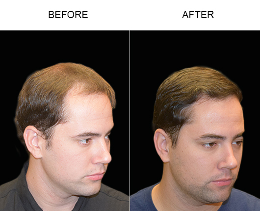 Hair Transplant Surgery Before And After In Florida