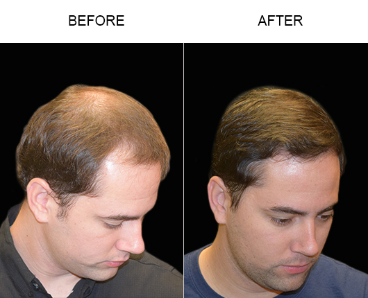 Hair Transplant Surgery Before & After In Florida