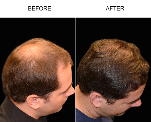 Hair Transplant Surgery Results In Florida
