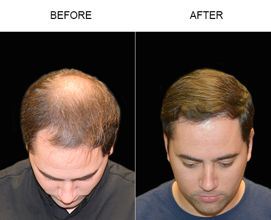 Before And After Hair Transplant Surgery In Florida
