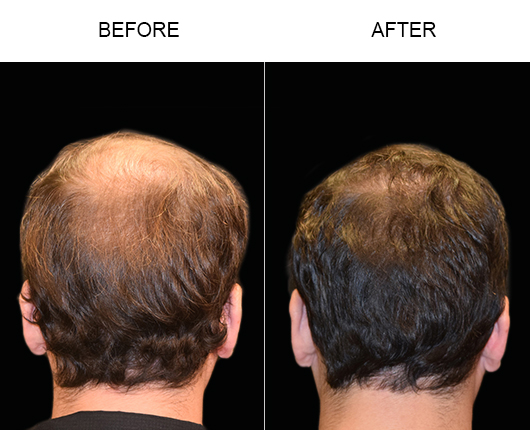 Before & After Hair Transplant Surgery In Florida