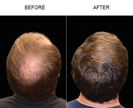 Hair Transplant Before And After Image