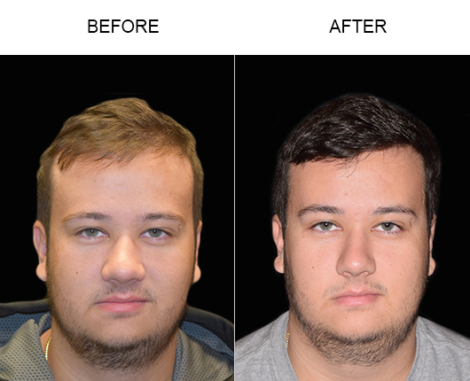 Hair Transplant Before & After Image