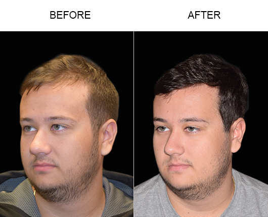 Image Of Hair Transplant Results