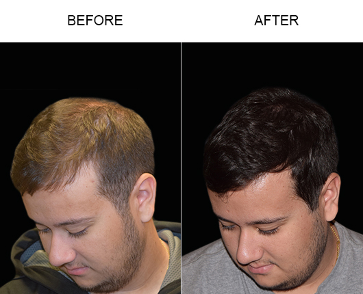 Before And After Image Of Hair Transplant