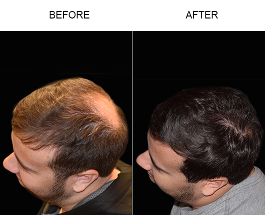 Before & After Image Of Hair Transplant
