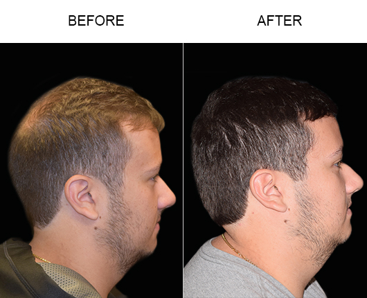 Hair Transplant Before And After Image In Florida