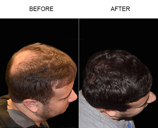 Hair Transplant Before & After Image In Florida