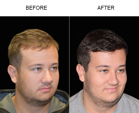 Image Of Hair Transplant Results In Florida