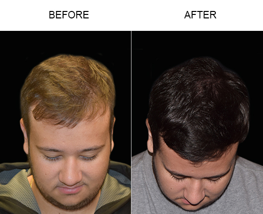 Before And After Image Of Hair Transplant In Florida