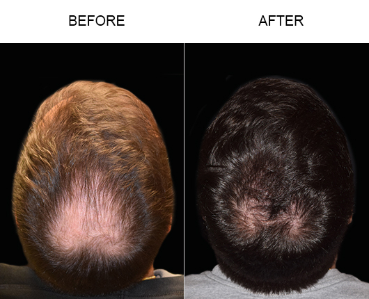 Before & After Image Of Hair Transplant In Florida