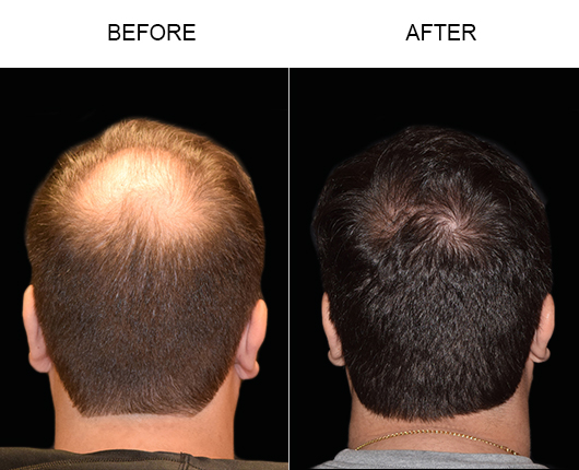 Hair Transplant Surgery Before And After Image