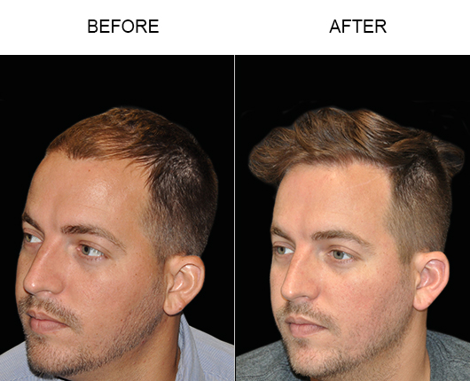 Hair Transplant Surgery Before & After Image