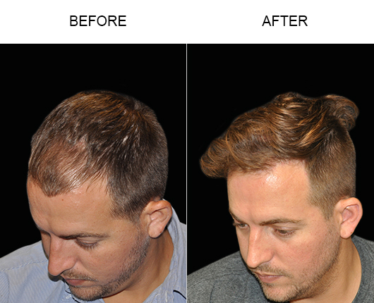 Image Of Hair Transplant Surgery Results