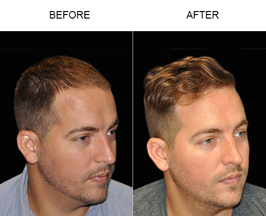 Before And After Image Of Hair Transplant Surgery