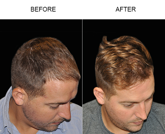 Before & After Image Of Hair Transplant Surgery