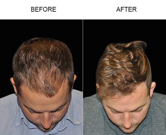 Hair Transplant Surgery Before And After Image In Florida