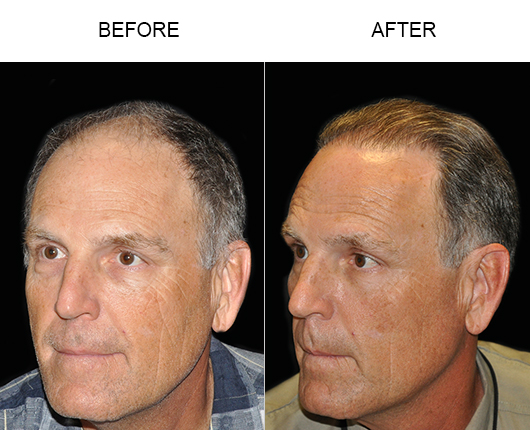 Hair Transplant Surgery Before & After Image In Florida