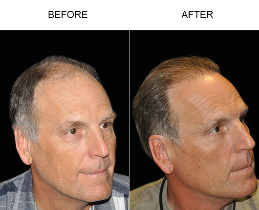 Image Of Hair Transplant Surgery Results In Florida