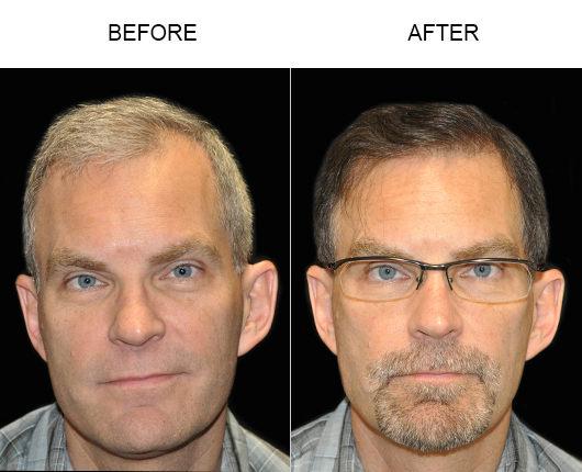 Before And After Image Of Hair Transplant Surgery In Florida