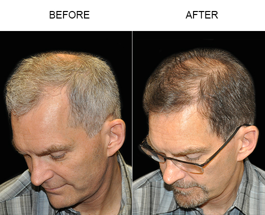 Before & After Image Of Hair Transplant Surgery In Florida