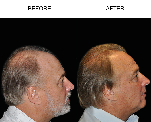 Hair Transplant Before And After Photo
